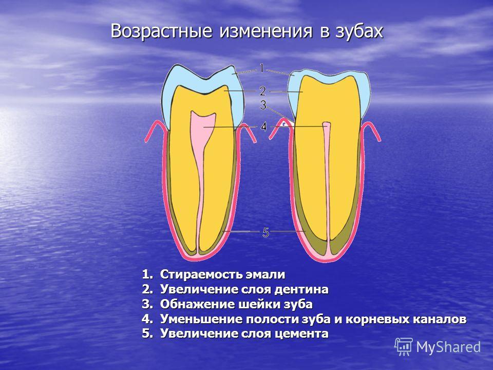 Возрастные изменения в зубах 1.С тираемость эмали 2.У величение слоя дентина 3.О бнажение шейки зуба 4.У меньшение полости зуба и корневых каналов 5.У величение слоя цемента