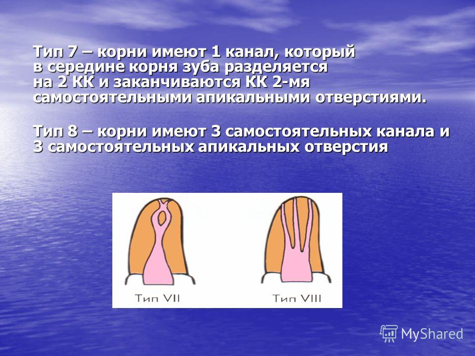 Тип 7 – корни имеют 1 канал, который в середине корня зуба разделяется на 2 КК и заканчиваются КК 2-мя самостоятельными апикальными отверстиями. Тип 8 – корни имеют 3 самостоятельных канала и 3 самостоятельных апикальных отверстия