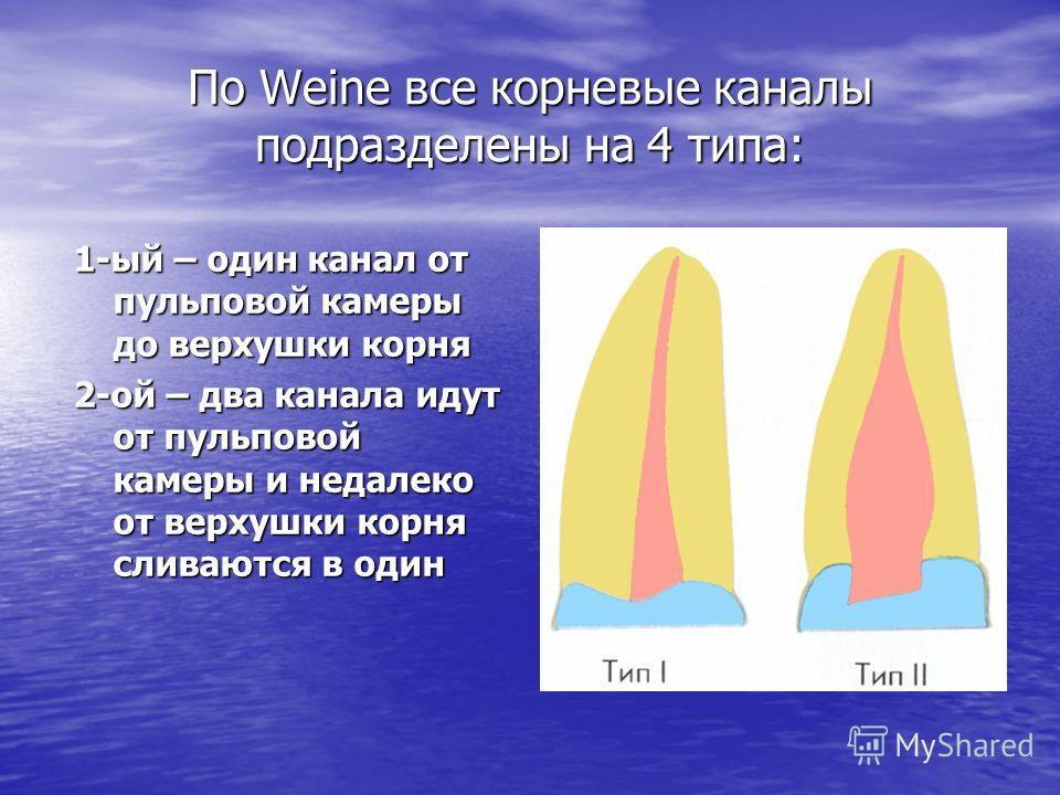По Weine все корневые каналы подразделены на 4 типа: 1-ый – один канал от пульповой камеры до верхушки корня 2-ой – два канала идут от пульповой камеры и недалеко от верхушки корня сливаются в один