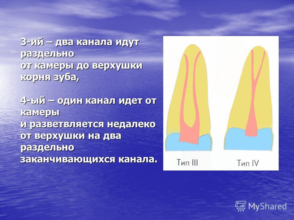 3-ий – два канала идут раздельно от камеры до верхушки корня зуба, 4-ый – один канал идет от камеры и разветвляется недалеко от верхушки на два раздельно заканчивающихся канала.
