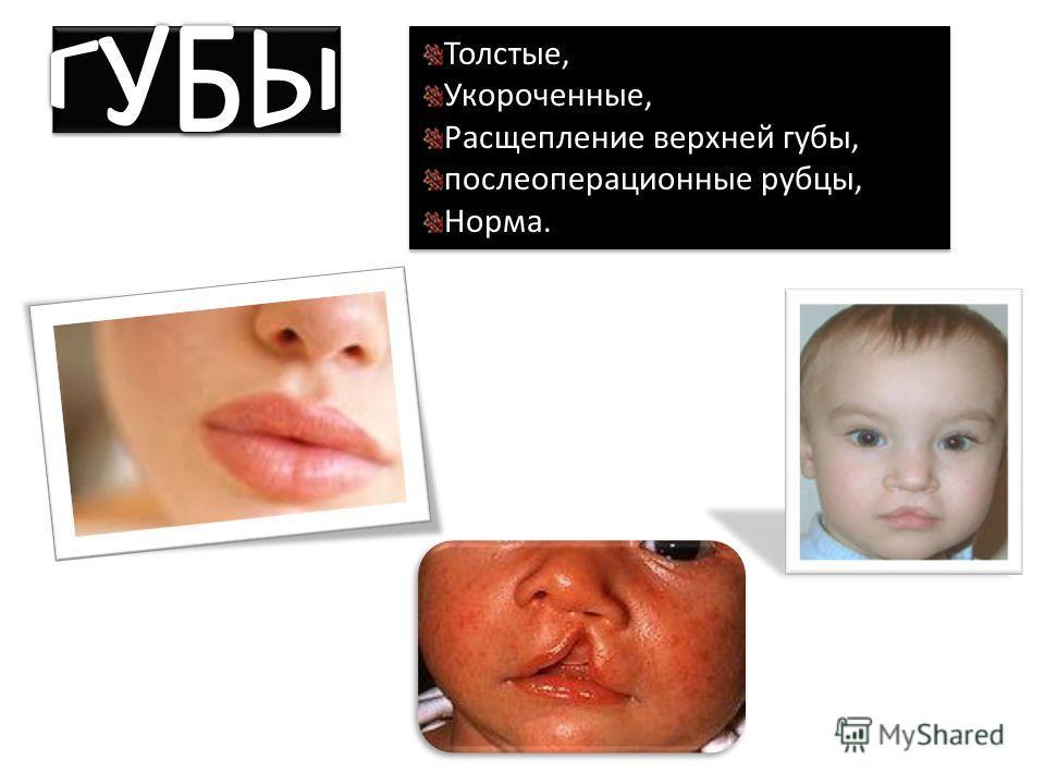 Толстые, Укороченные, Расщепление верхней губы, послеоперационные рубцы, Норма. Толстые, Укороченные, Расщепление верхней губы, послеоперационные рубцы, Норма.
