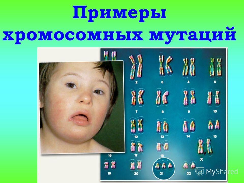 Примеры хромосомных мутаций