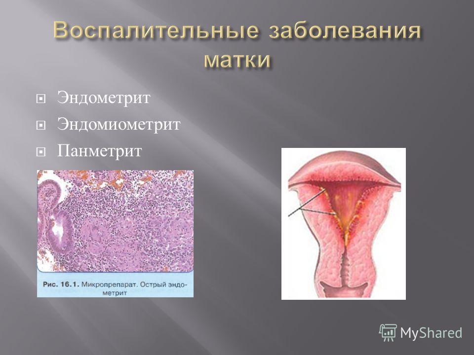 Эндометрит Эндомиометрит Панметрит