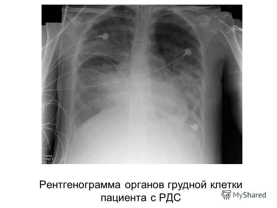 Рентгенограмма органов грудной клетки пациента с РДС