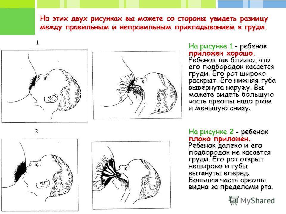 На этих двух рисунках вы можете со стороны увидеть разницу между правильным и неправильным прикладыванием к груди. На рисунке 1 - ребенок приложен хорошо. Ребенок так близко, что его подбородок касается груди. Его рот широко раскрыт. Его нижняя губа