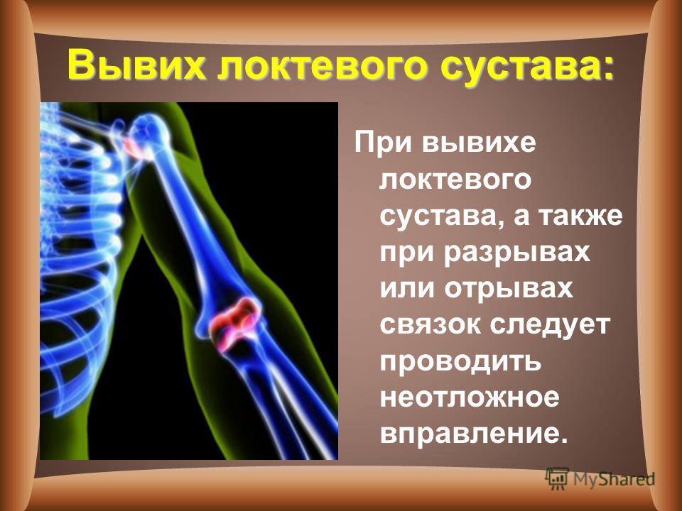 Вывих локтевого сустава: При вывихе локтевого сустава, а также при разрывах или отрывах связок следует проводить неотложное вправление.
