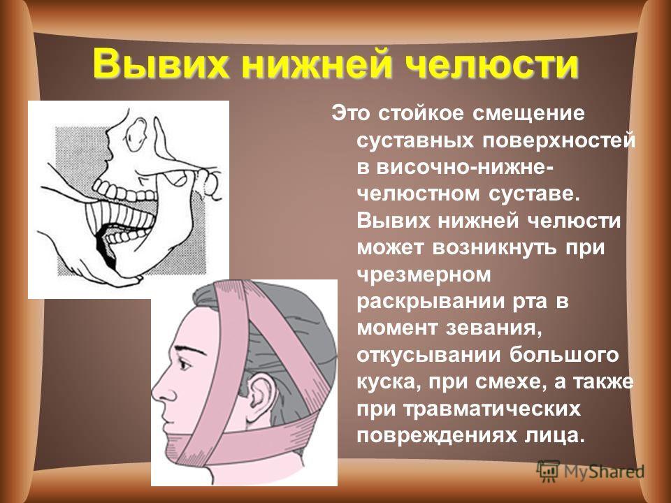 Вывих нижней челюсти Это стойкое смещение суставных поверхностей в височно-нижне- челюстном суставе. Вывих нижней челюсти может возникнуть при чрезмерном раскрывании рта в момент зевания, откусывании большого куска, при смехе, а также при травматичес