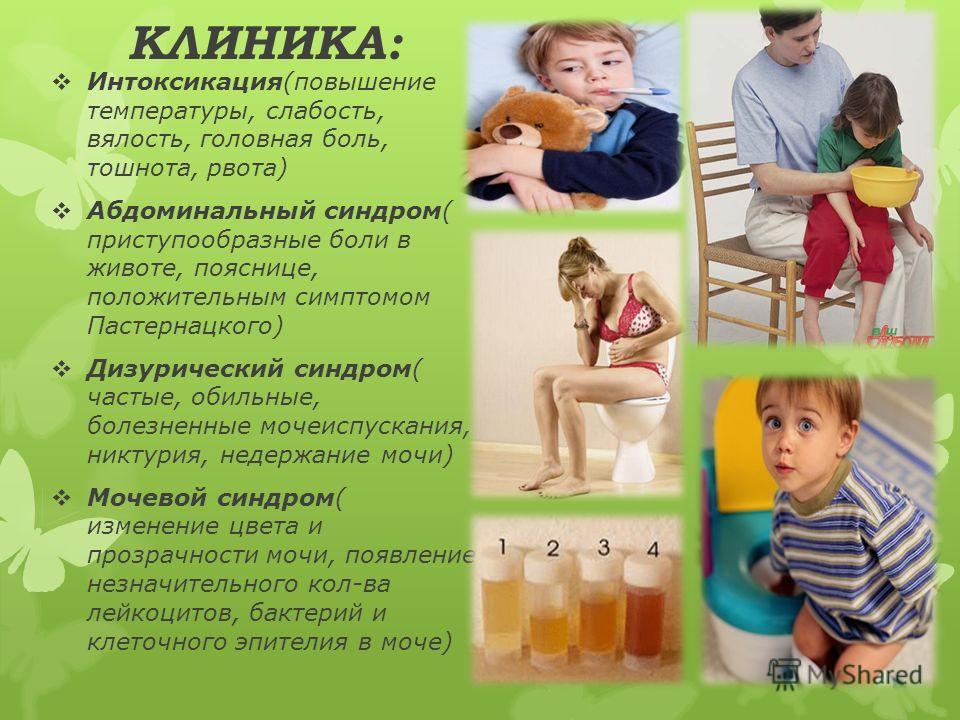 КЛИНИКА: Интоксикация(повышение температуры, слабость, вялость, головная боль, тошнота, рвота) Абдоминальный синдром( приступообразные боли в животе, пояснице, положительным симптомом Пастернацкого) Дизурический синдром( частые, обильные, болезненные