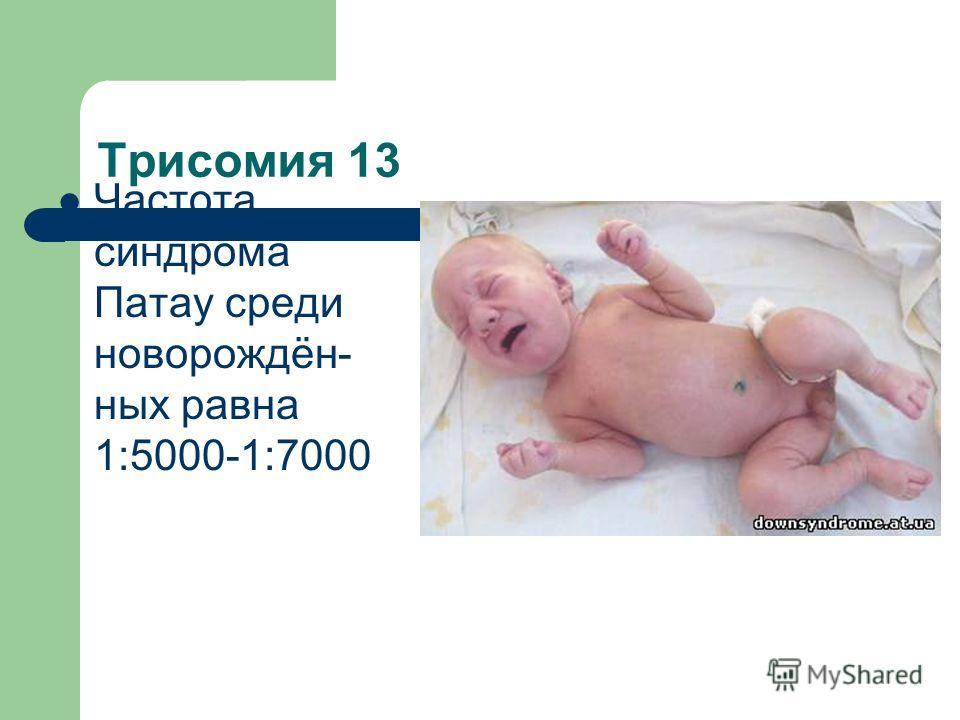 Трисомия 13 Частота синдрома Патау среди новорождён- ных равна 1:5000-1:7000