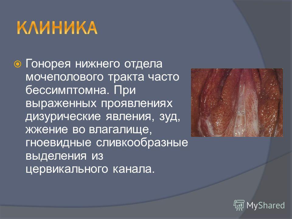 Гонорея нижнего отдела мочеполового тракта часто бессимптомна. При выраженных проявлениях дизурические явления, зуд, жжение во влагалище, гноевидные сливкообразные выделения из цервикального канала.