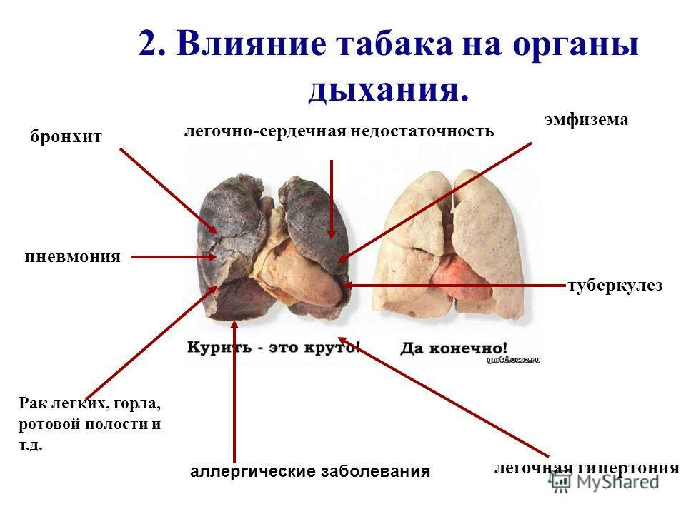 2. Влияние табака на органы дыхания. пневмония бронхит Рак легких, горла, ротовой полости и т.д. легочная гипертония легочно-сердечная недостаточность эмфизема аллергические заболевания туберкулез