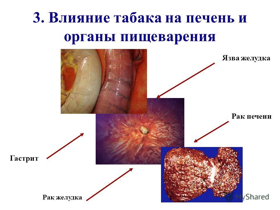 3. Влияние табака на печень и органы пищеварения Рак желудка Гастрит Рак печени Язва желудка