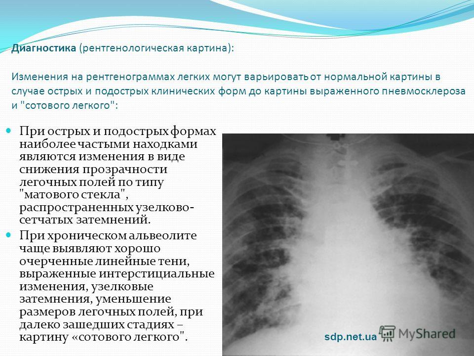 Диагностика (рентгенологическая картина): Изменения на рентгенограммах легких могут варьировать от нормальной картины в случае острых и подострых клинических форм до картины выраженного пневмосклероза и