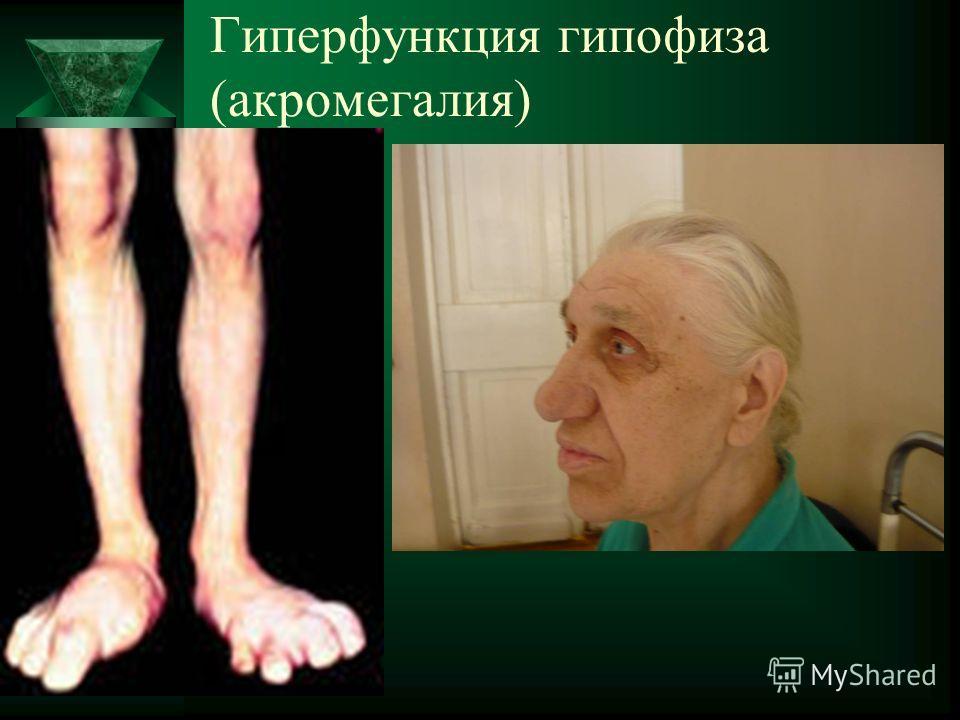 Гиперфункция гипофиза (акромегалия)