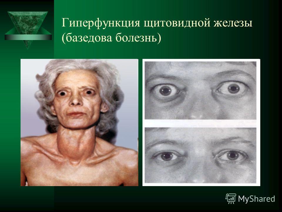 Болезнь Базедова фото