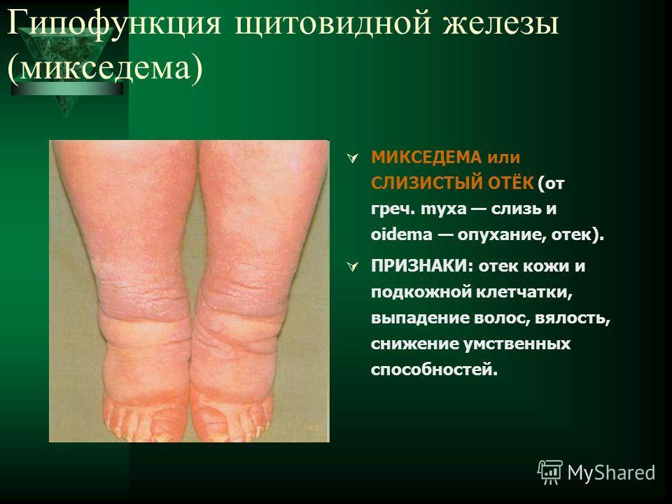 Гипофункция щитовидной железы (микседема) МИКСЕДЕМА или СЛИЗИСТЫЙ ОТЁК (от греч. myxa слизь и oidema опухание, отек). ПРИЗНАКИ: отек кожи и подкожной клетчатки, выпадение волос, вялость, снижение умственных способностей.