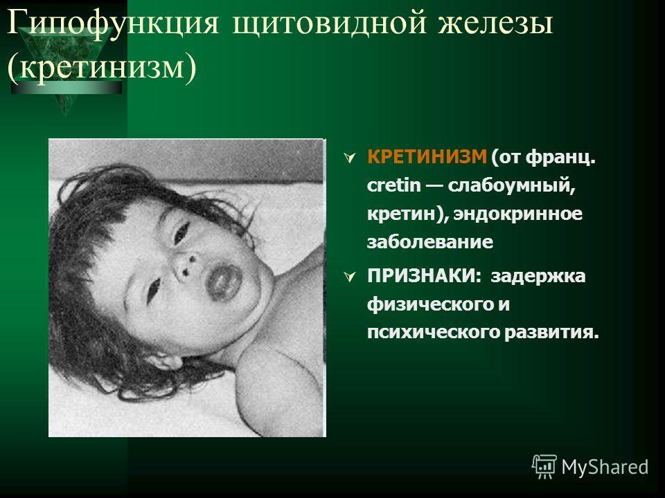 Гипофункция щитовидной железы (кретинизм) КРЕТИНИЗМ (от франц. cretin слабоумный, кретин), эндокринное заболевание ПРИЗНАКИ: задержка физического и психического развития.