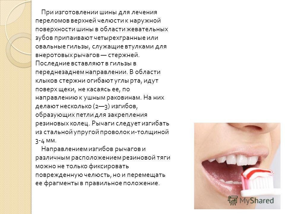 При изготовлении шины для лечения переломов верхней челюсти к наружной поверхности шины в области жевательных зубов припаивают четырехгранные или овальные гильзы, служащие втулками для внеротовых рычагов стержней. Последние вставляют в гильзы в перед