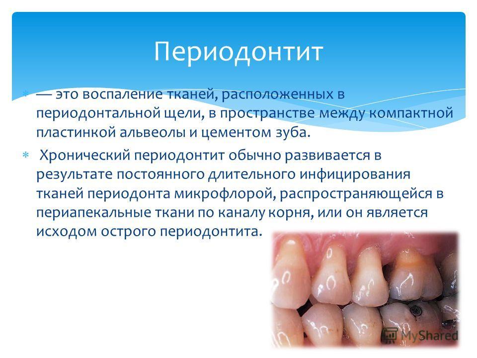 это воспаление тканей, расположенных в периодонтальной щели, в пространстве между компактной пластинкой альвеолы и цементом зуба. Хронический периодонтит обычно развивается в результате постоянного длительного инфицирования тканей периодонта микрофло