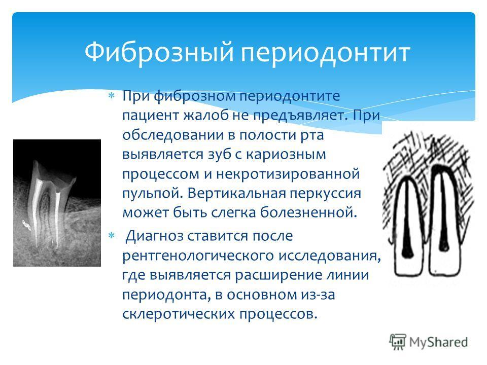 При фиброзном периодонтите пациент жалоб не предъявляет. При обследовании в полости рта выявляется зуб с кариозным процессом и некротизированной пульпой. Вертикальная перкуссия может быть слегка болезненной. Диагноз ставится после рентгенологического