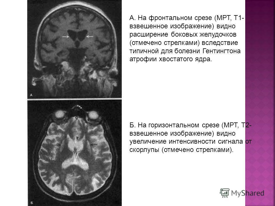 А. На фронтальном срезе (МРТ, Т1- взвешенное изображение) видно расширение боковых желудочков (отмечено стрелками) вследствие типичной для болезни Гентингтона атрофии хвостатого ядра. Б. На горизонтальном срезе (МРТ, Т2- взвешенное изображение) видно