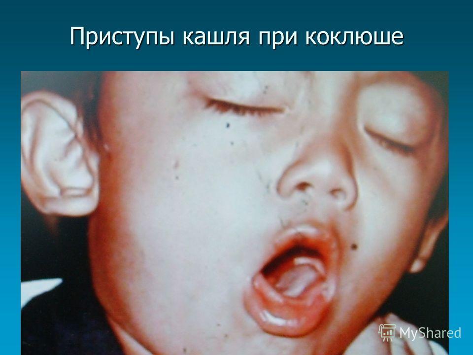 Приступы кашля при коклюше