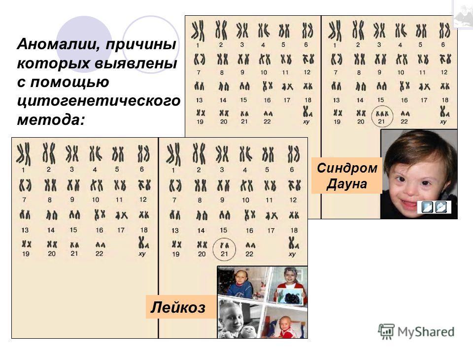 Цитогенетический метод - Изучение структуры и числа хромосом; выявление хромосомных аберраций; составление генетических карт хромосом. Аберрация хромосомная Аберрация хромосомная (хромосомная аномалия) - обобщенное название любого из типов хромосомны