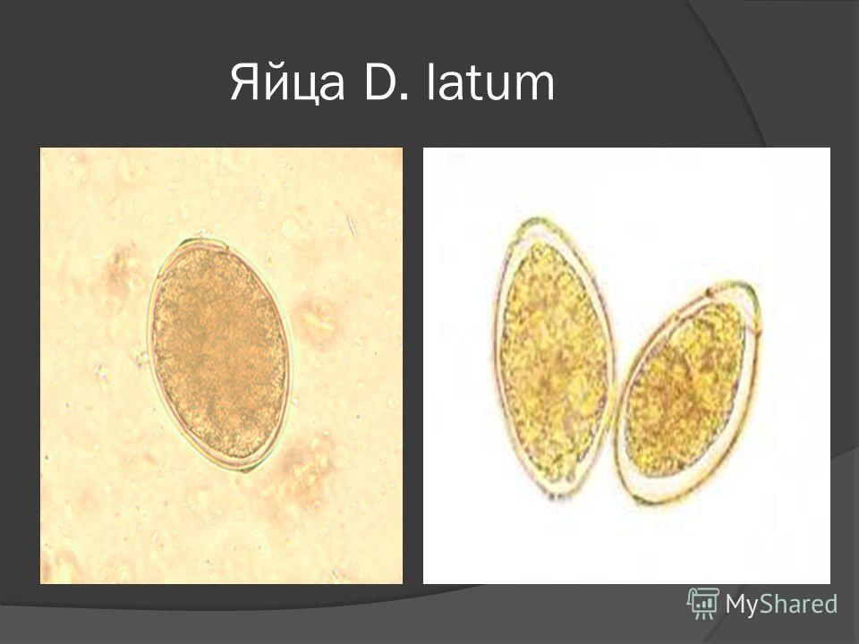 Яйца D. latum