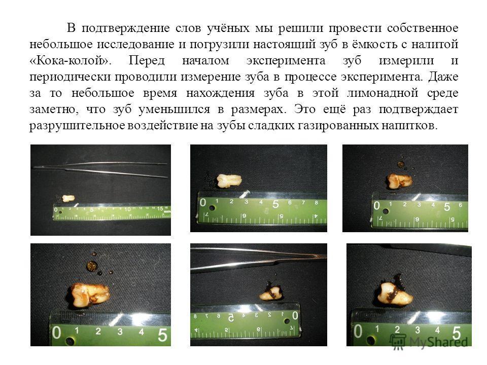 В подтверждение слов учёных мы решили провести собственное небольшое исследование и погрузили настоящий зуб в ёмкость с налитой «Кока-колой». Перед началом эксперимента зуб измерили и периодически проводили измерение зуба в процессе эксперимента. Даж