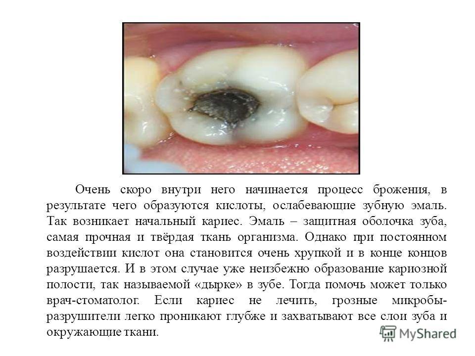 Очень скоро внутри него начинается процесс брожения, в результате чего образуются кислоты, ослабевающие зубную эмаль. Так возникает начальный кариес. Эмаль – защитная оболочка зуба, самая прочная и твёрдая ткань организма. Однако при постоянном возде