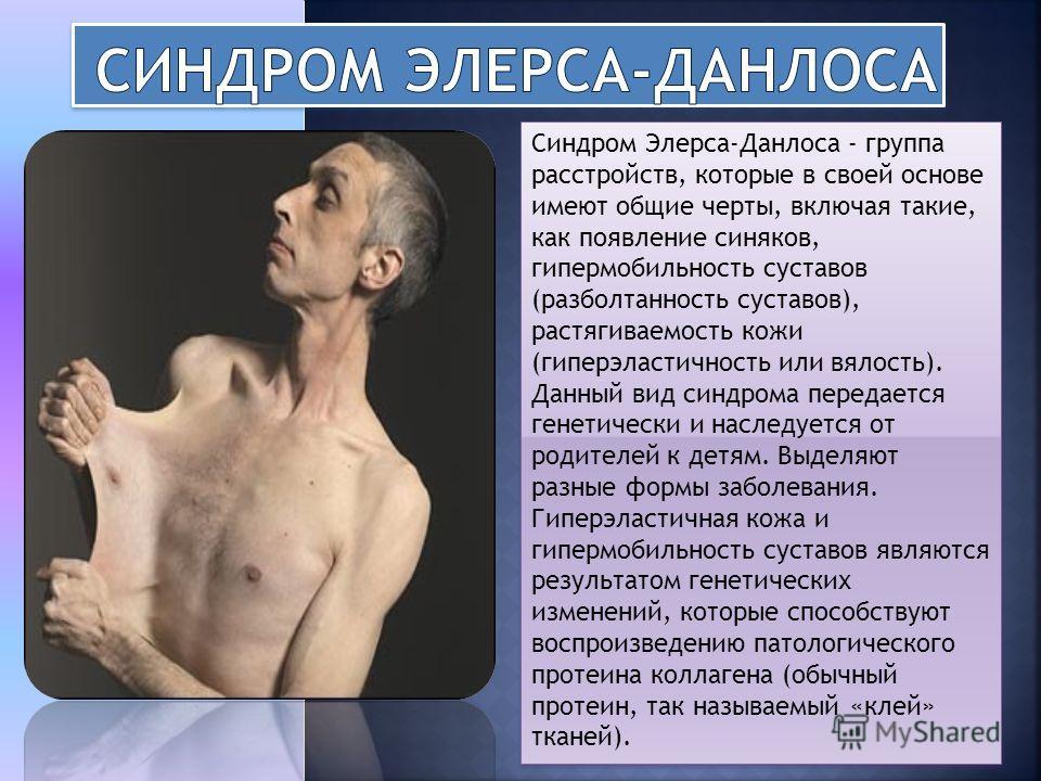 Синдром Элерса-Данлоса - группа расстройств, которые в своей основе имеют общие черты, включая такие, как появление синяков, гипермобильность суставов (разболтанность суставов), растягиваемость кожи (гиперэластичность или вялость). Данный вид синдром