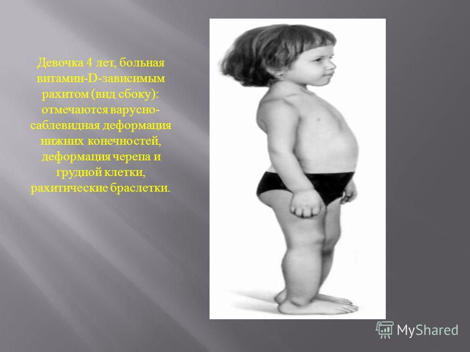 Девочка 4 лет, больная витамин -D- зависимым рахитом ( вид сбоку ): отмечаются варусно - саблевидная деформация нижних конечностей, деформация черепа и грудной клетки, рахитические браслетки.