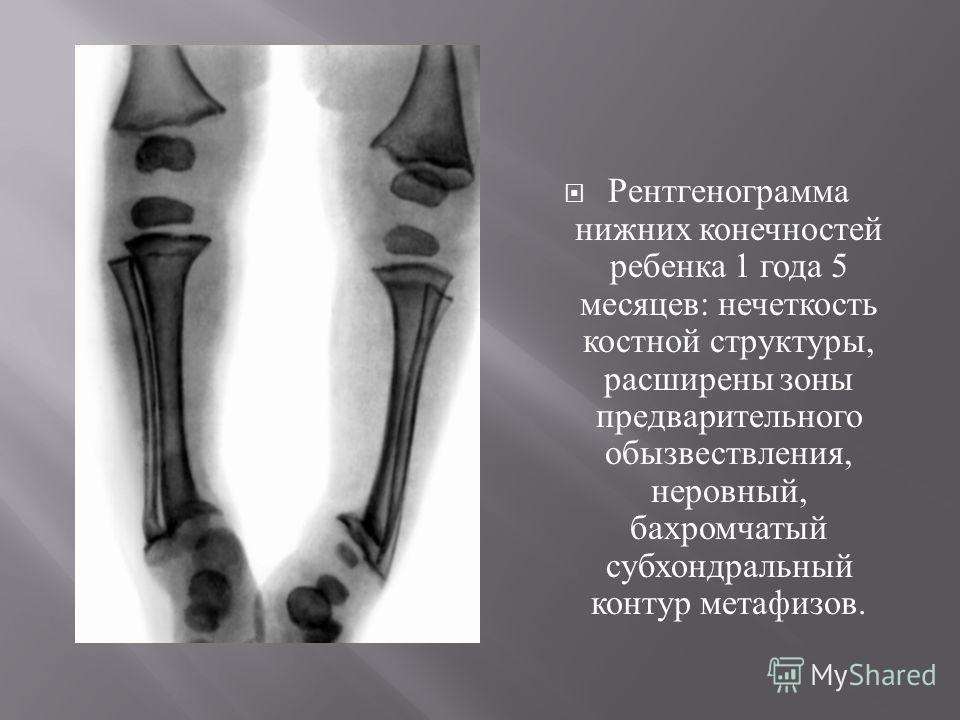 Рентгенограмма нижних конечностей ребенка 1 года 5 месяцев : нечеткость костной структуры, расширены зоны предварительного обызвествления, неровный, бахромчатый субхондральный контур метафизов.