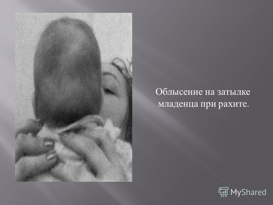 Облысение на затылке младенца при рахите.