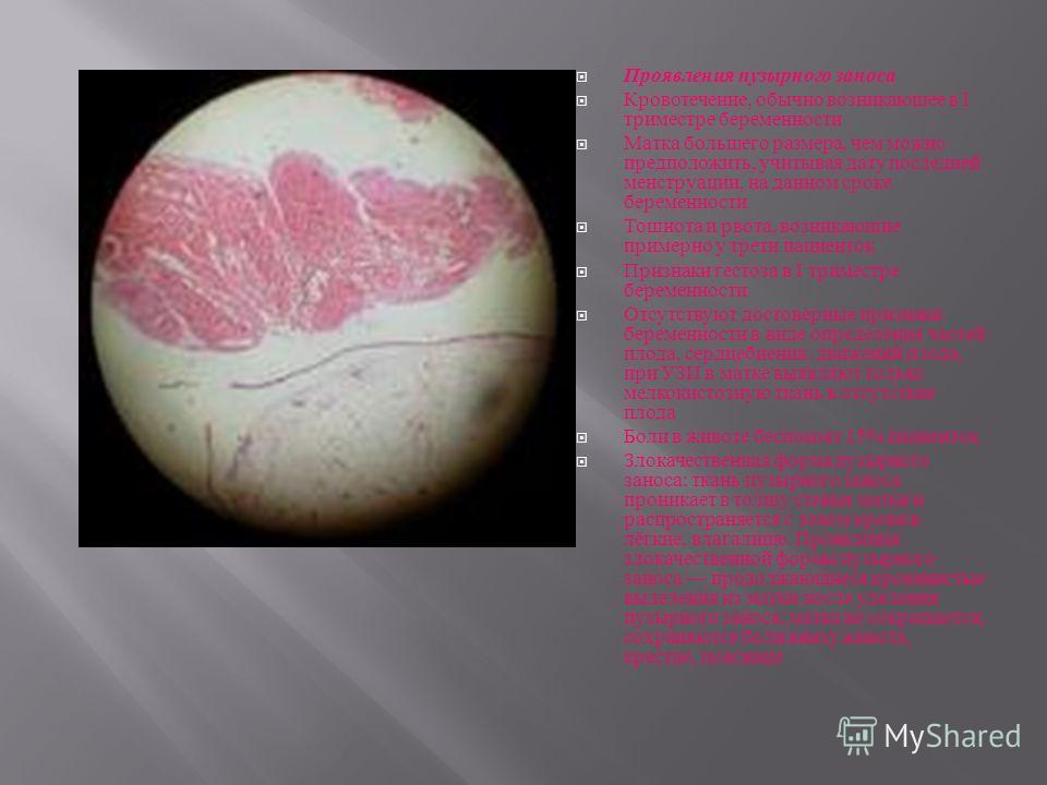 Проявления пузырного заноса Кровотечение, обычно возникающее в I триместре беременности Матка большего размера, чем можно предположить, учитывая дату последней менструации, на данном сроке беременности Тошнота и рвота, возникающие примерно у трети па