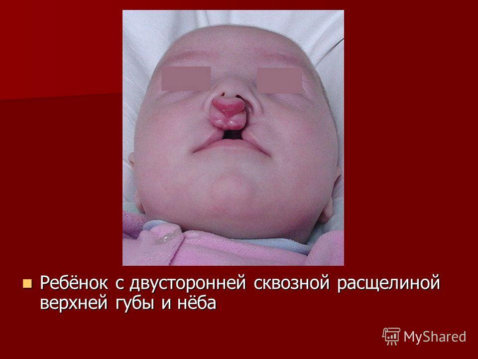 Ребёнок с двусторонней сквозной расщелиной верхней губы и нёба Ребёнок с двусторонней сквозной расщелиной верхней губы и нёба