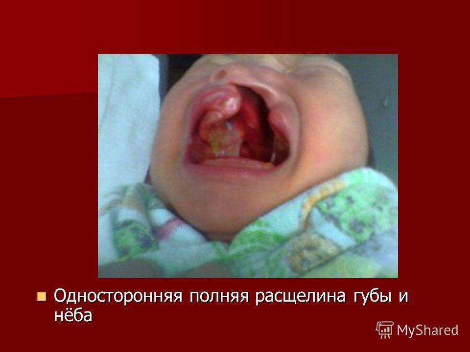 Односторонняя полняя расщелина губы и нёба Односторонняя полняя расщелина губы и нёба