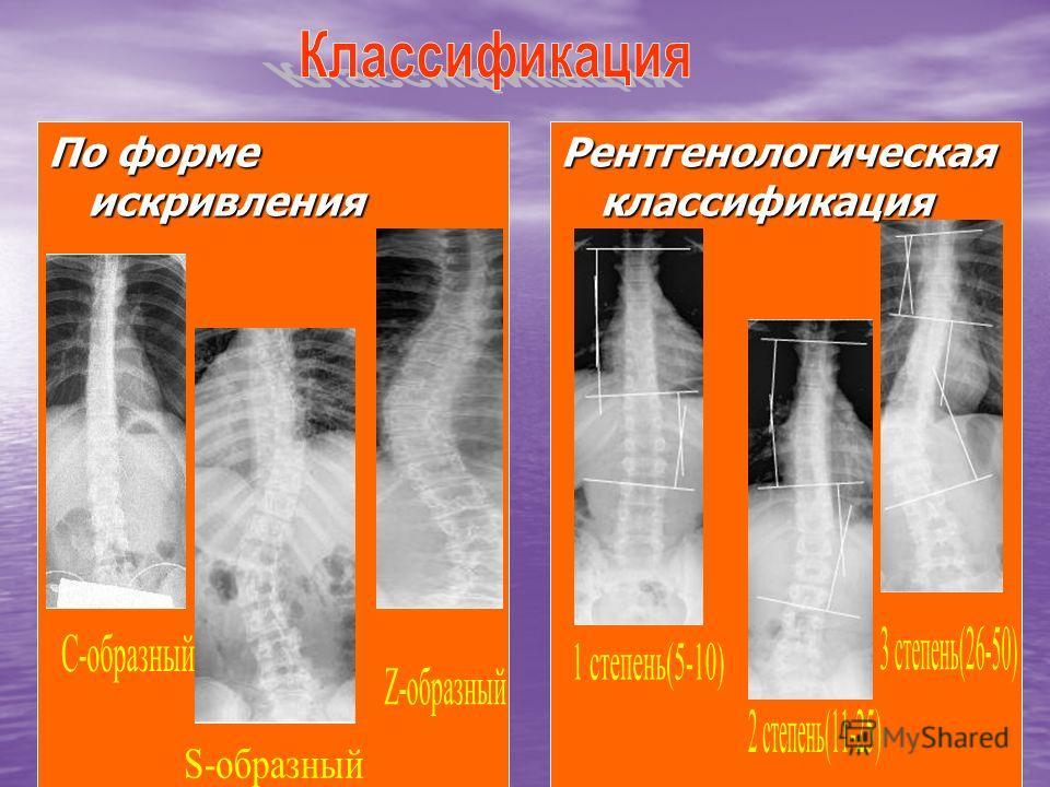 По форме искривления Рентгенологическая классификация