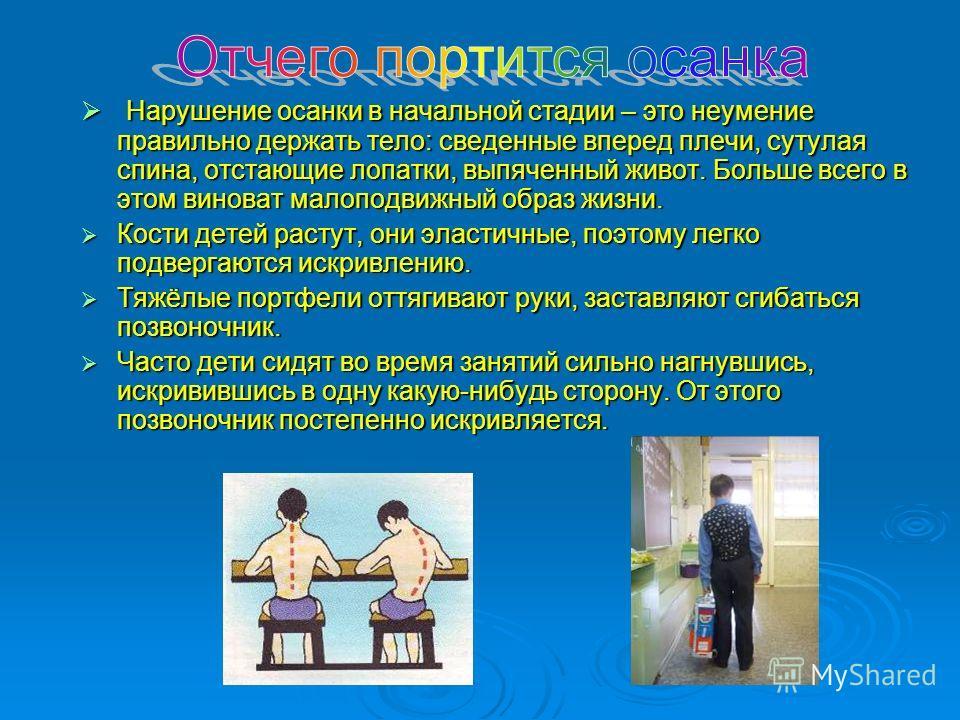 Нарушение осанки в начальной стадии – это неумение правильно держать тело: сведенные вперед плечи, сутулая спина, отстающие лопатки, выпяченный живот. Больше всего в этом виноват малоподвижный образ жизни. Нарушение осанки в начальной стадии – это не