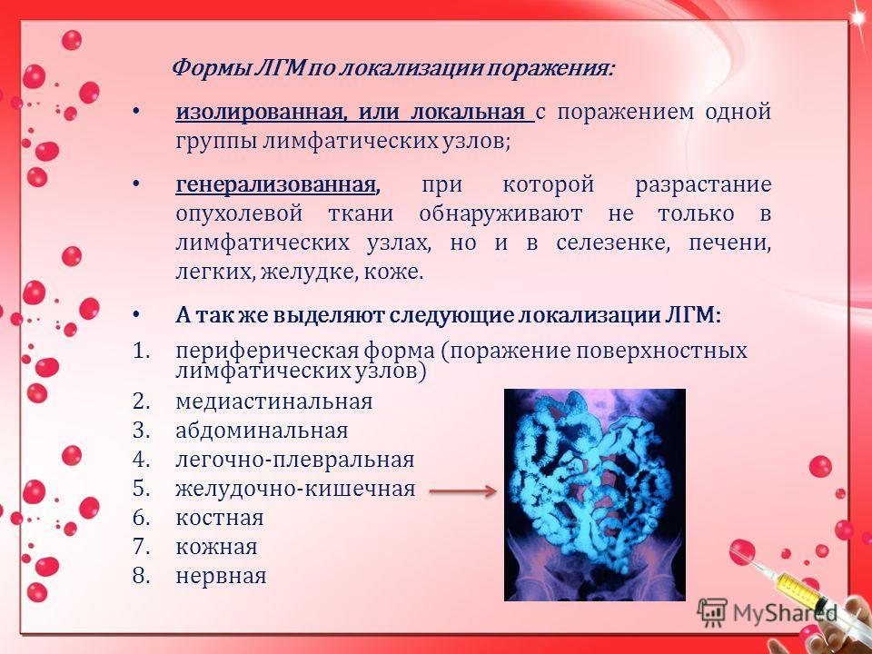 Формы ЛГМ по локализации поражения: изолированная, или локальная с поражением одной группы лимфатических узлов; генерализованная, при которой разрастание опухолевой ткани обнаруживают не только в лимфатических узлах, но и в селезенке, печени, легких,