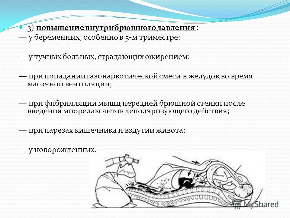 3) повышение внутрибрюшного давления : у беременных, особенно в 3-м триместре; у тучных больных, страдающих ожирением; при попадании газонаркотической смеси в желудок во время масочной вентиляции; при фибрилляции мышц передней брюшной стенки после вв