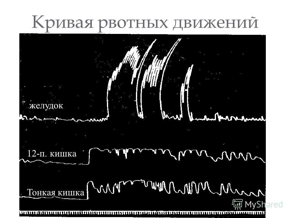 Кривая рвотных движений желудок 12-п. кишка Тонкая кишка