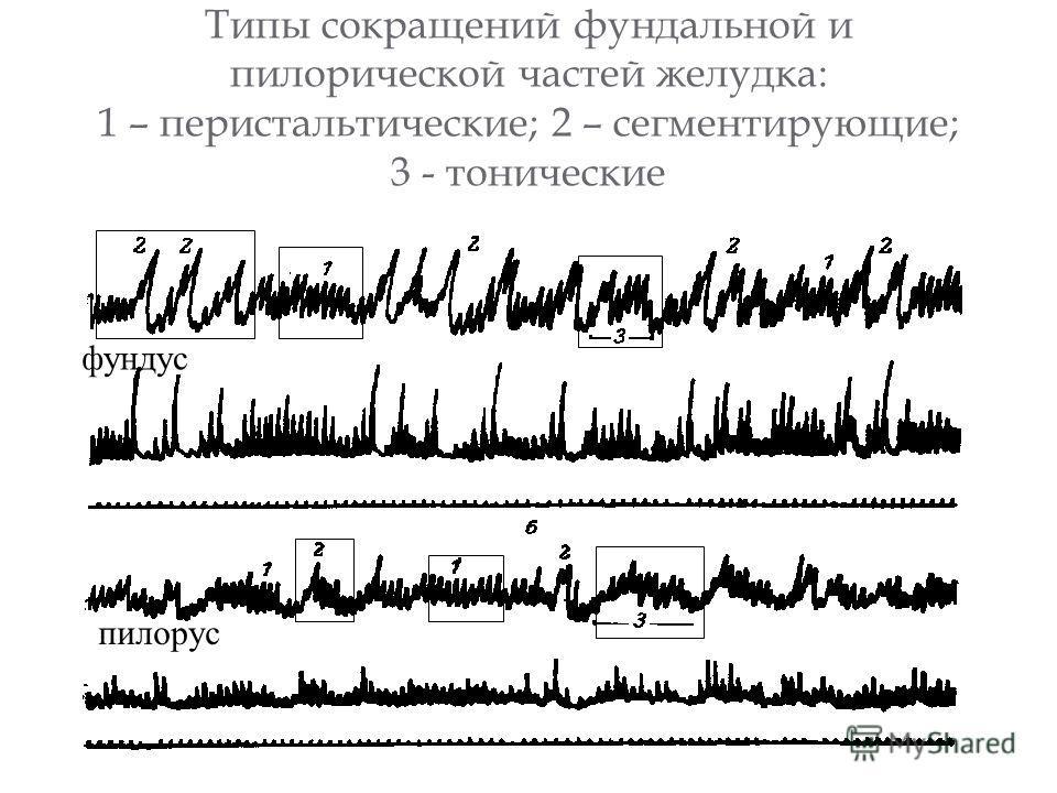 Типы сокращений фундальной и пилорической частей желудка: 1 – перистальтические; 2 – сегментирующие; 3 - тонические фундус пилорус