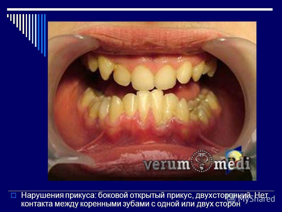Нарушения прикуса: боковой открытый прикус, двухсторонний. Нет контакта между коренными зубами с одной или двух сторон