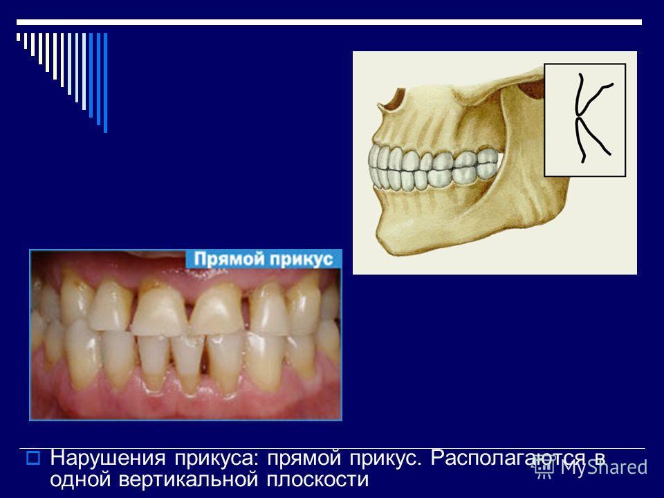В верхней челюсти нет полностью зубов 24