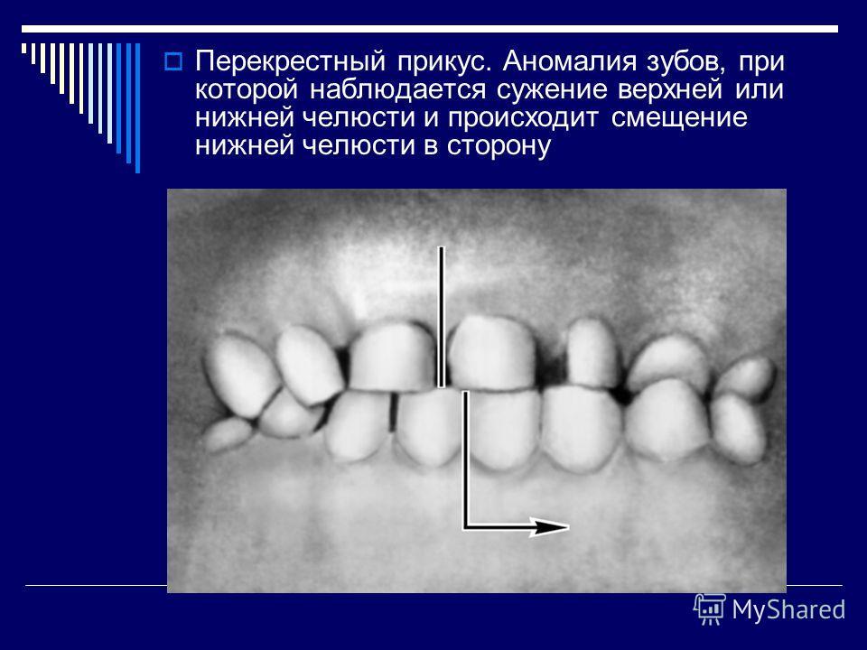 Перекрестный прикус. Аномалия зубов, при которой наблюдается сужение верхней или нижней челюсти и происходит смещение нижней челюсти в сторону