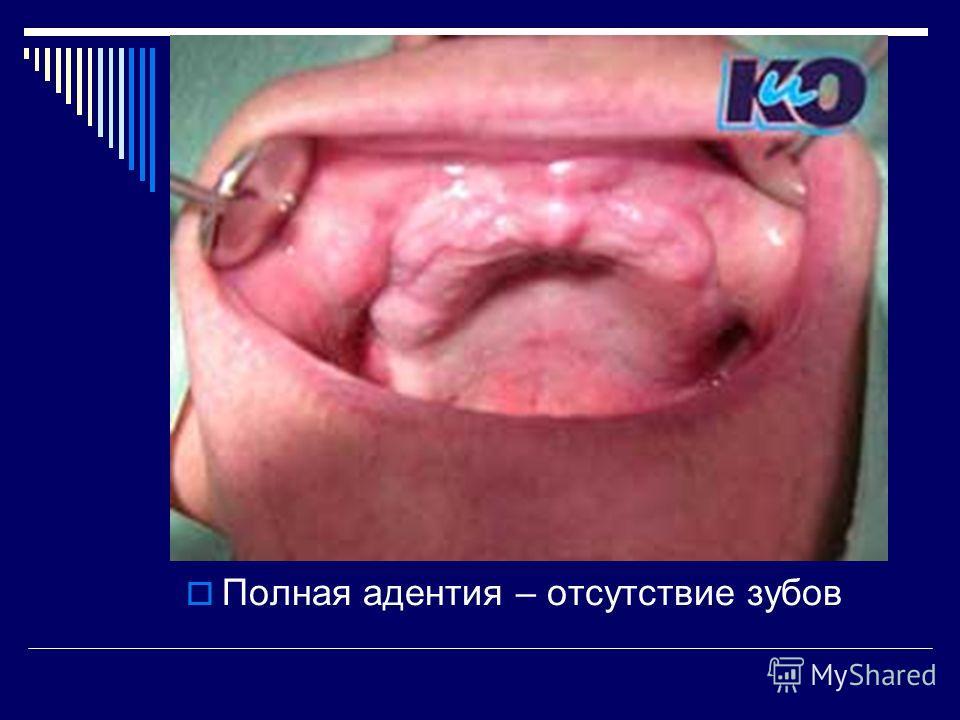 Полная адентия – отсутствие зубов