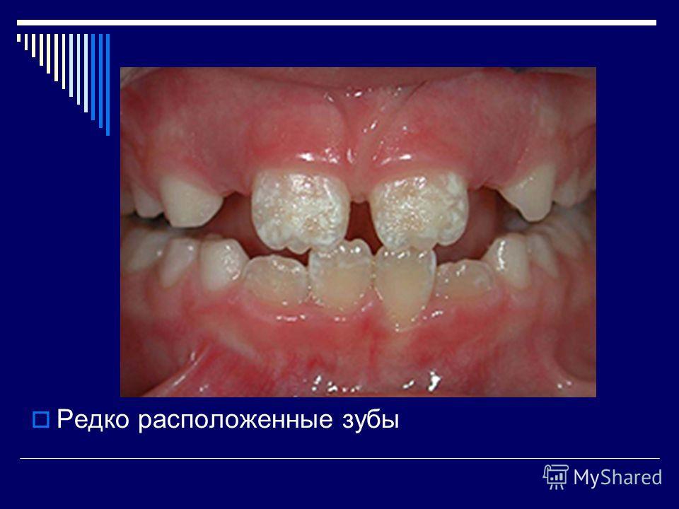 Редко расположенные зубы