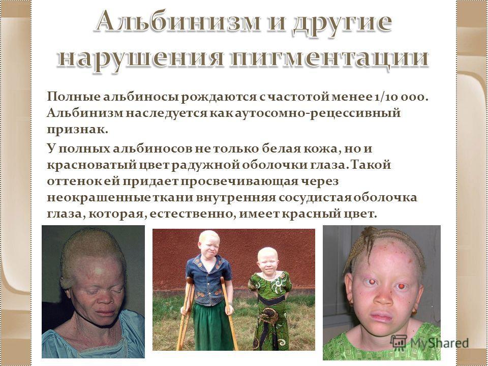 Полные альбиносы рождаются с частотой менее 1/10 000. Альбинизм наследуется как аутосомно-рецессивный признак. У полных альбиносов не только белая кожа, но и красноватый цвет радужной оболочки глаза. Такой оттенок ей придает просвечивающая через неок