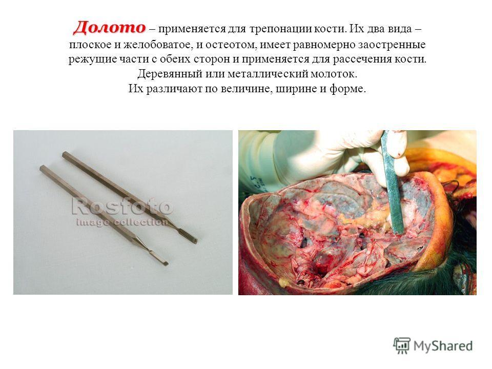 Долото Долото – применяется для трепонации кости. Их два вида – плоское и желобоватое, и остеотом, имеет равномерно заостренные режущие части с обеих сторон и применяется для рассечения кости. Деревянный или металлический молоток. Их различают по вел